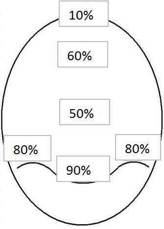 Пример миниатюризации учится в различных частях скальпа в человеке со значительной миниатюризацией.