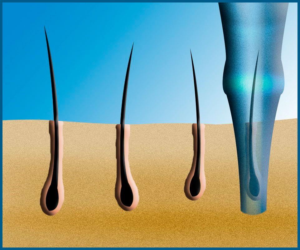 Что такое графт волос?