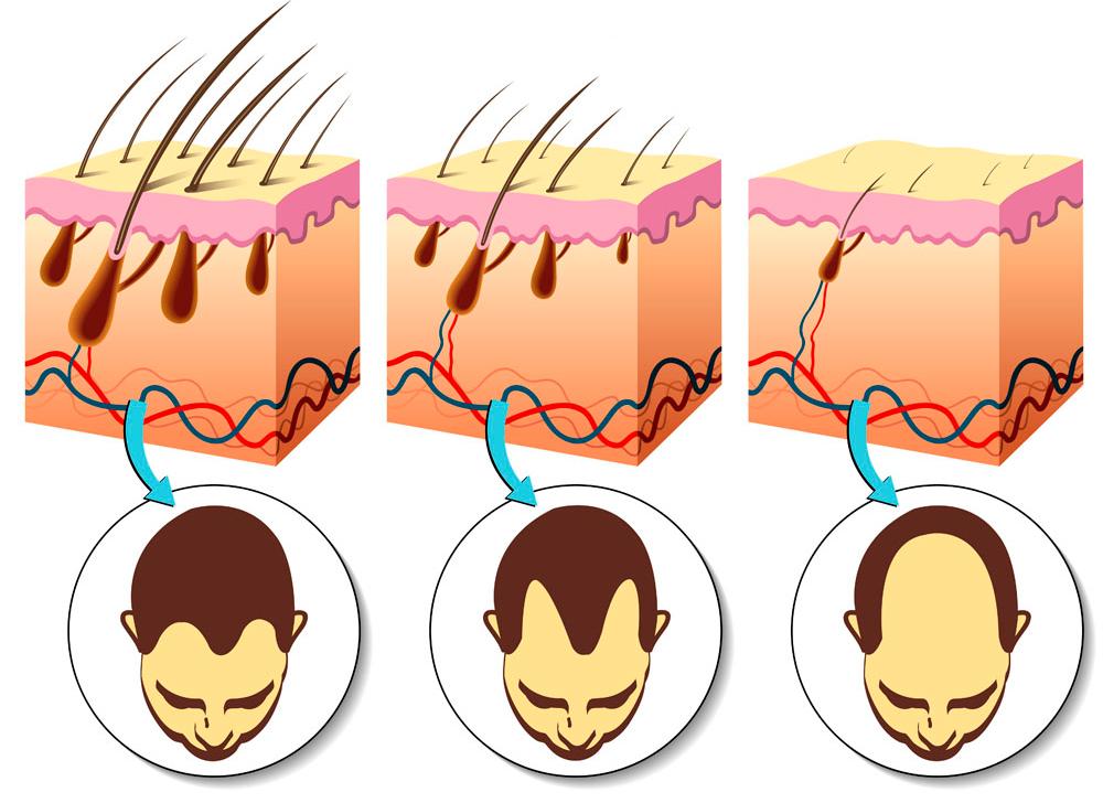 Патогенетическое лечение