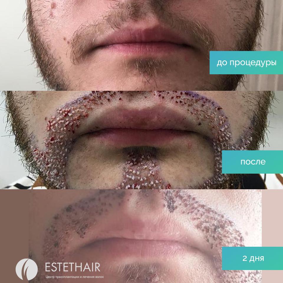 Результат после пересадки бороды. Фото до и после операции.