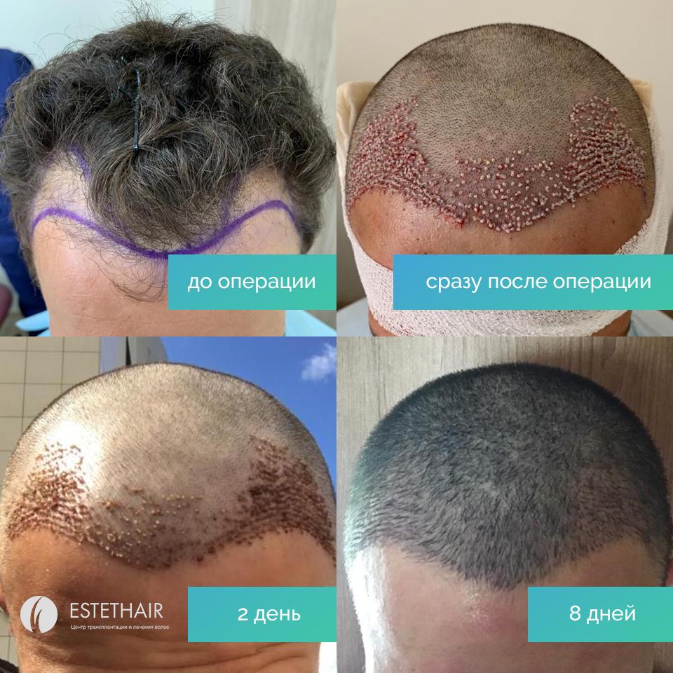 Место пересадки волос_уход после пересадки_3